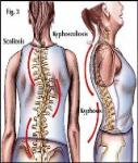Marfan syndrome متلازمة مارفان